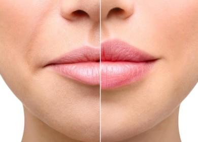 Увеличение губ гилауроновой кислотой