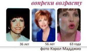 Гимнастика Кэрол Маджио – молодость лица надолго