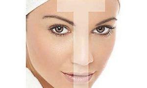 Комбинированная кожа после 30 лет: особенности ухода