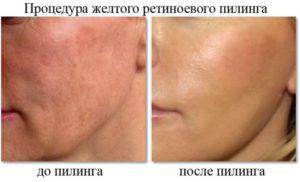 ретиноевый пилинг до и после фото