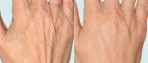 биоревитализация рук