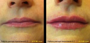 Фото: увеличение губ гилауроновой кислотой 0,5 мл, фото до и после