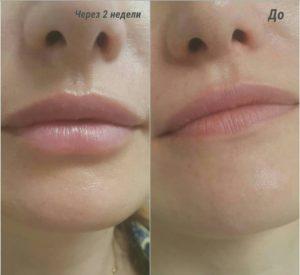 увеличение губ гилауроновой кислотой 1 мл, до и после