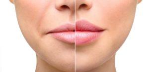 увеличение губ гилауроновой кислотой фото до и после