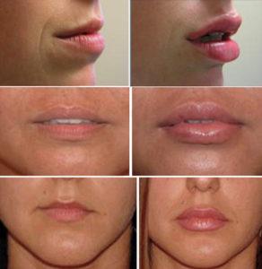 Фото работ по увеличению губ гилауроновой кислотой филлером объемом 1 мл, до и после