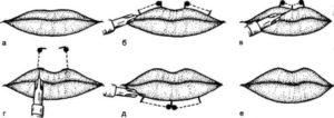 Парижские губы, техника