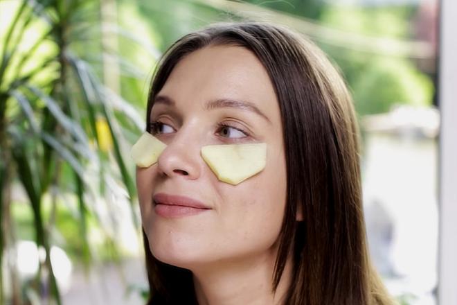 Как убрать круги под глазами быстро в домашних условиях